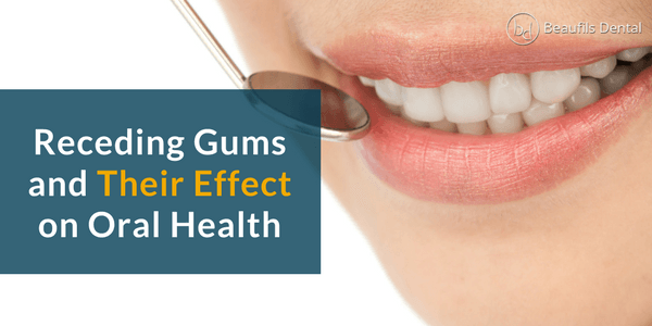 receding gums and their effect